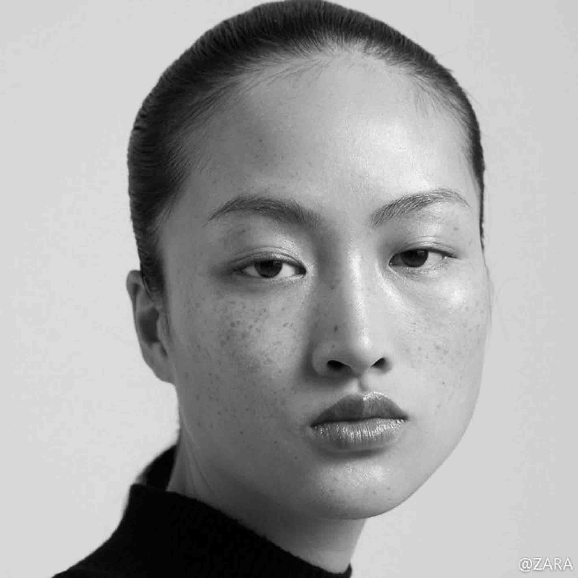 Outrage Over Zara Using Freckle-Faced Model In China