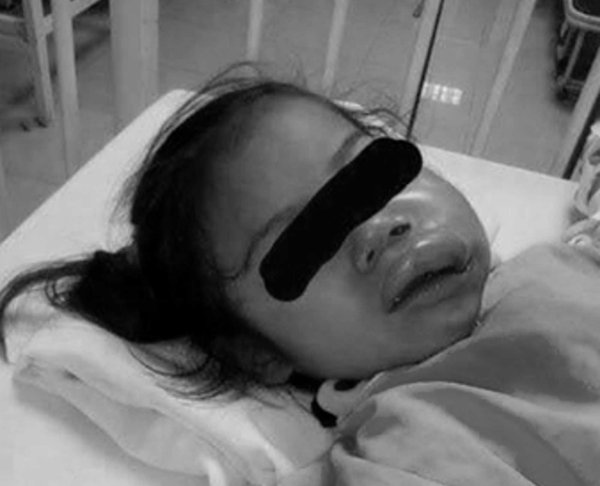 Mum Reports Nursery After Tots Face Disfigured In Class
